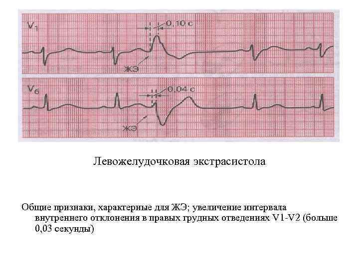 Левожелудочковая экстрасистола Общие признаки, характерные для ЖЭ; увеличение интервала внутреннего отклонения в правых грудных