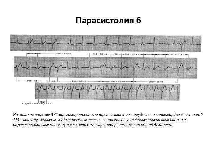 Парасистолия 6 • Примером такой аритмии является ЭКГ больного 67 лет с диагнозом: ишемическая