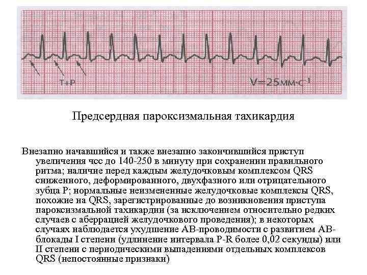 Предсердная пароксизмальная тахикардия Внезапно начавшийся и также внезапно закончившийся приступ увеличения чсс до 140