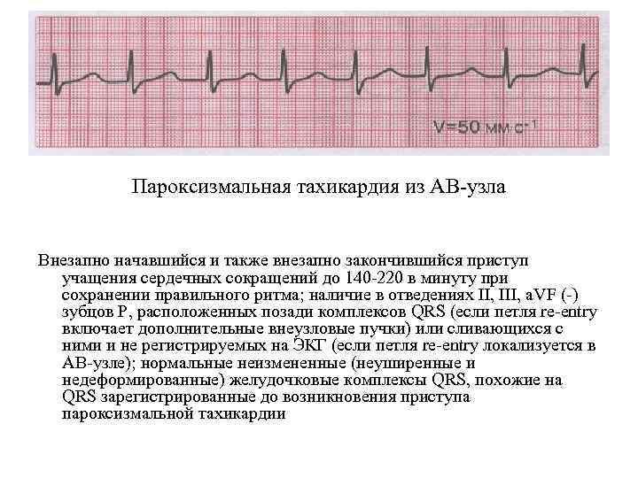 Пароксизмальная тахикардия из АВ узла Внезапно начавшийся и также внезапно закончившийся приступ учащения сердечных