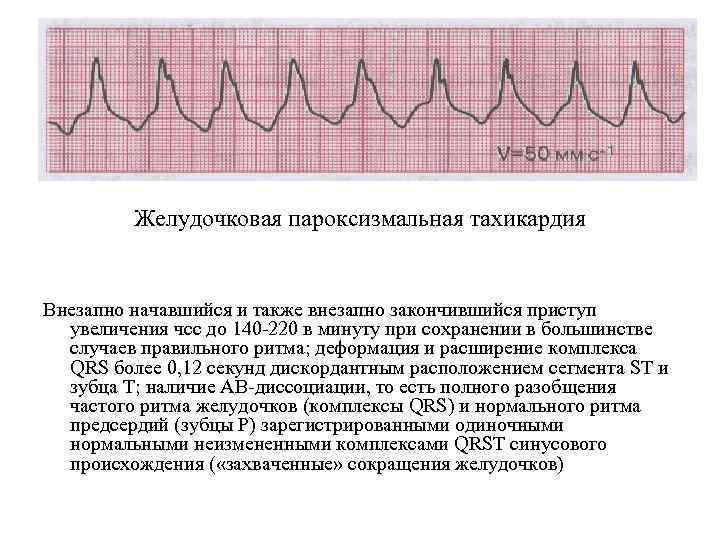 Желудочковая пароксизмальная тахикардия Внезапно начавшийся и также внезапно закончившийся приступ увеличения чсс до 140
