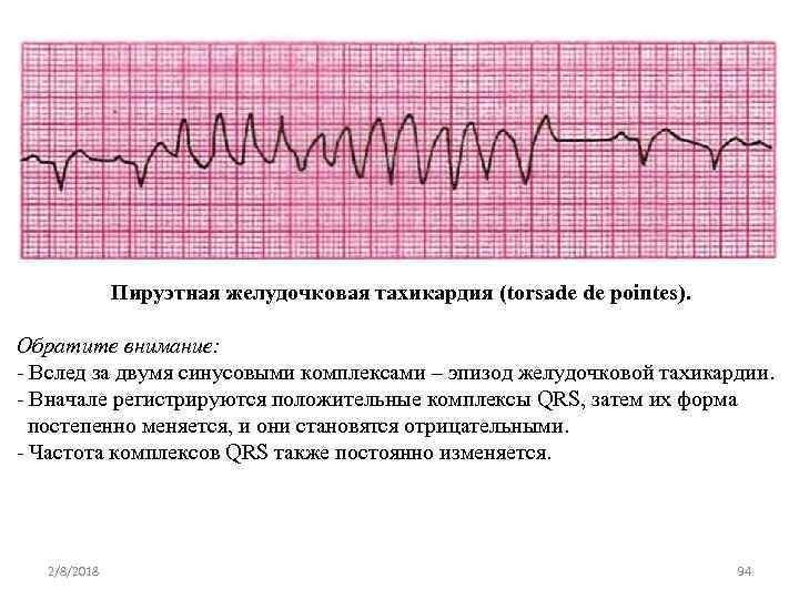 Пируэтная желудочковая тахикардия (torsade de pointes). Обратите внимание: Вслед за двумя синусовыми комплексами –