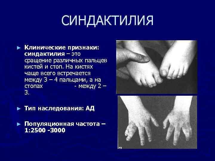 СИНДАКТИЛИЯ ► Клинические признаки: синдактилия – это сращение различных пальцев кистей и стоп. На
