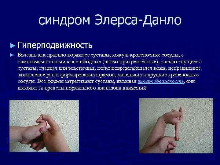 синдром Элерса-Данло ► Гиперподвижность ► Болезнь как правило поражает суставы, кожу и кровеносные сосуды,
