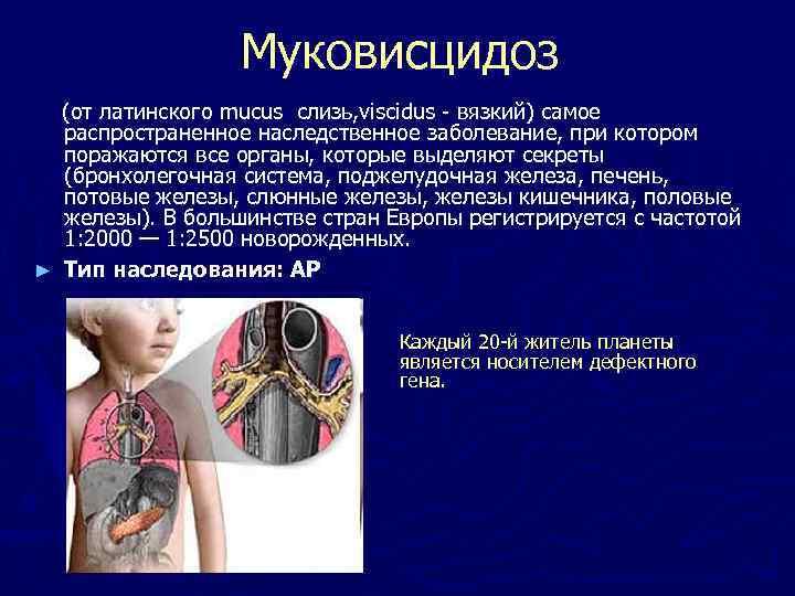 Муковисцидоз (от латинского mucus слизь, viscidus - вязкий) самое распространенное наследственное заболевание, при котором
