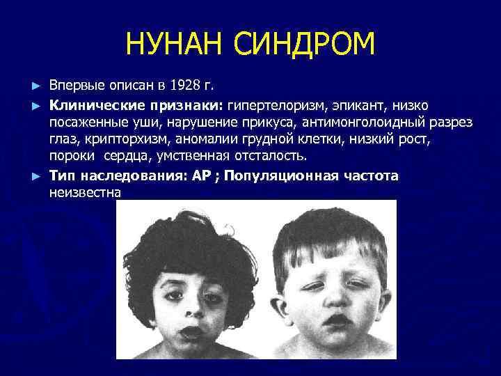 НУНАН СИНДРОМ Впервые описан в 1928 г. ► Клинические признаки: гипертелоризм, эпикант, низко посаженные