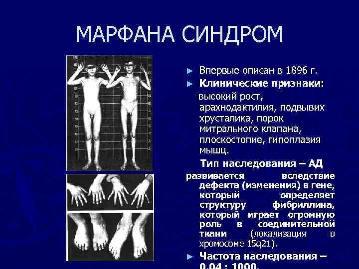 МАРФАНА СИНДРОМ Впервые описан в 1896 г. ► Клинические признаки: высокий рост, арахнодактилия, подвывих