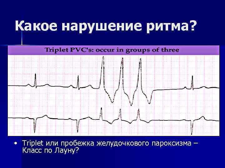 Какое нарушение ритма? • Triplet или пробежка желудочкового пароксизма – Класс по Лауну?
