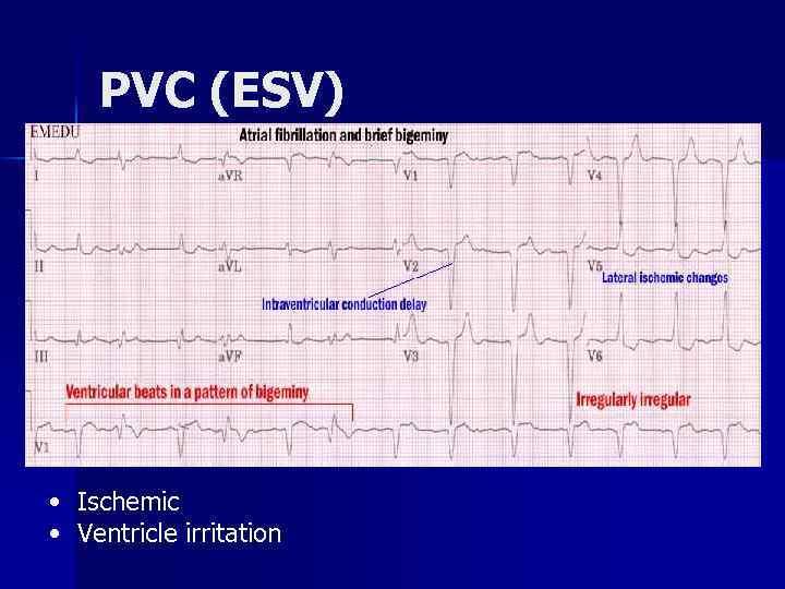 PVC (ESV) • Ischemic • Ventricle irritation