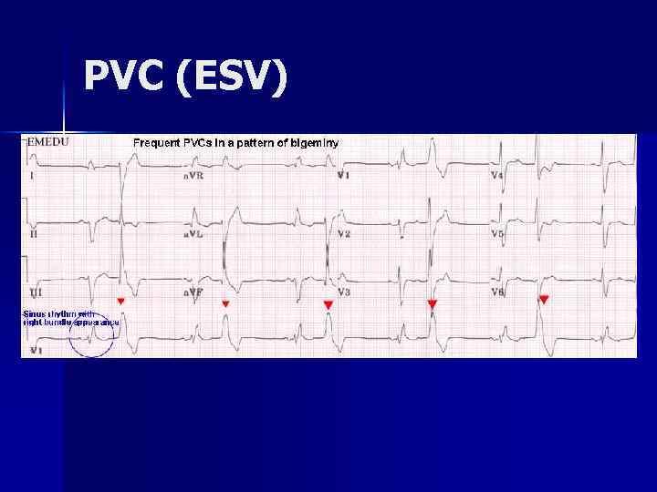 PVC (ESV)