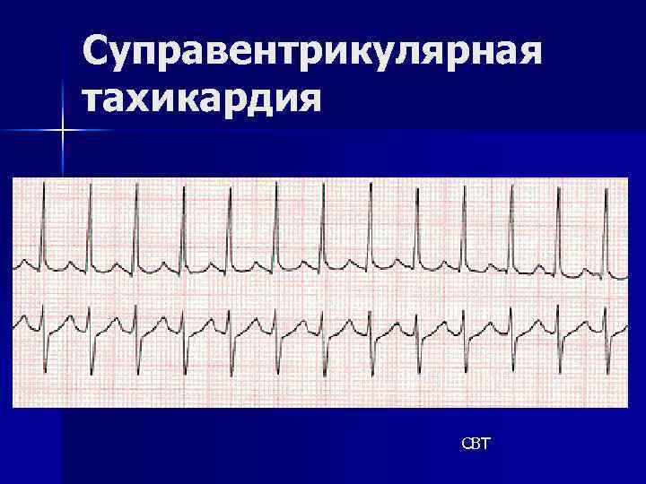 Суправентрикулярная тахикардия СВТ
