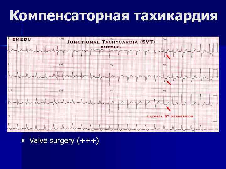 Компенсаторная тахикардия • Valve surgery (+++)
