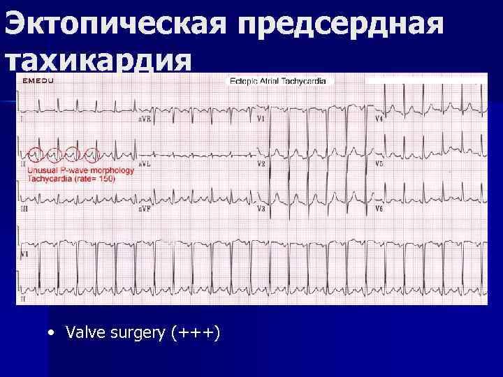 Эктопическая предсердная тахикардия • Valve surgery (+++)
