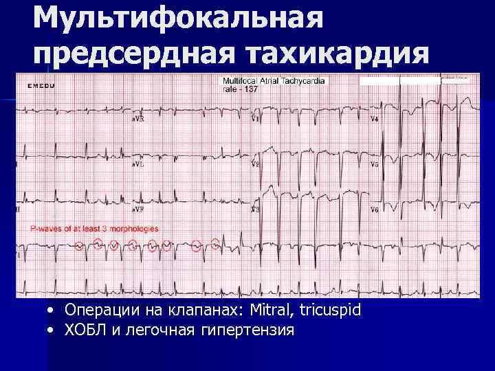 Мультифокальная предсердная тахикардия • Операции на клапанах: Mitral, tricuspid • ХОБЛ и легочная гипертензия