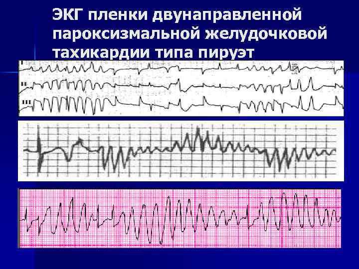 ЭКГ пленки двунаправленной пароксизмальной желудочковой тахикардии типа пируэт
