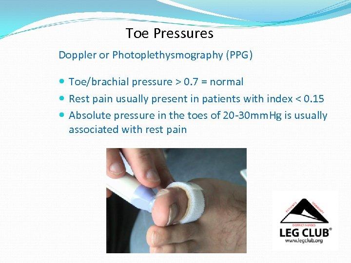 Toe Pressures Doppler or Photoplethysmography (PPG) Toe/brachial pressure > 0. 7 = normal Rest