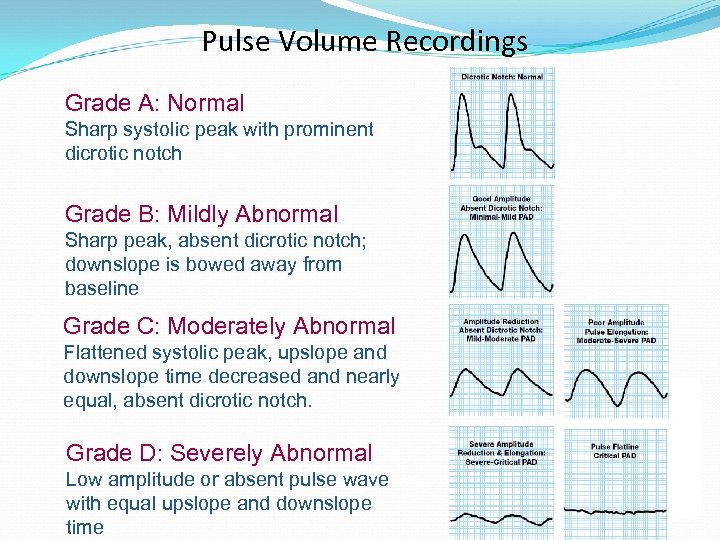 Pulse Volume Recordings Grade A: Normal Sharp systolic peak with prominent dicrotic notch Grade