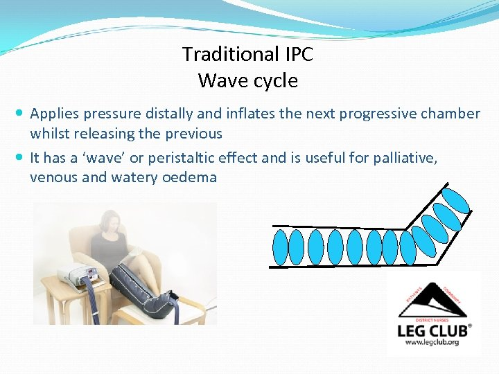 Traditional IPC Wave cycle Applies pressure distally and inflates the next progressive chamber whilst