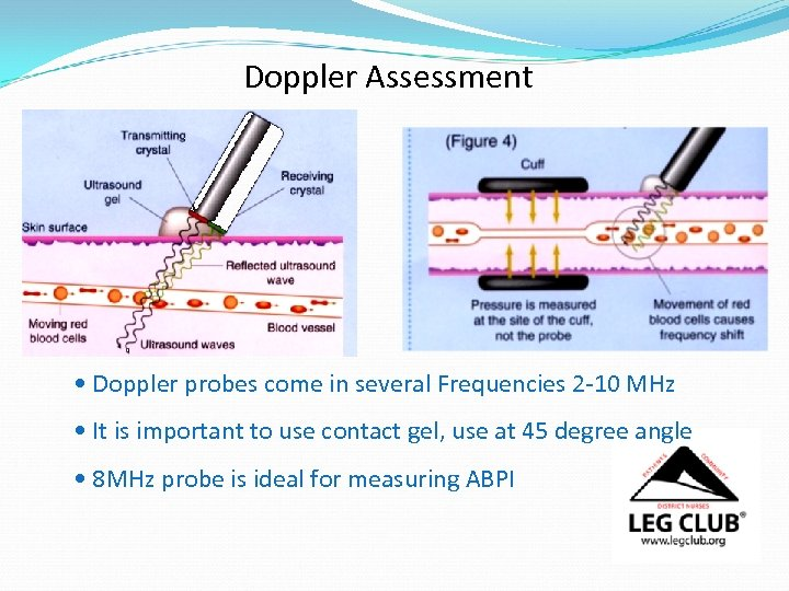 Doppler Assessment • Doppler probes come in several Frequencies 2 -10 MHz • It