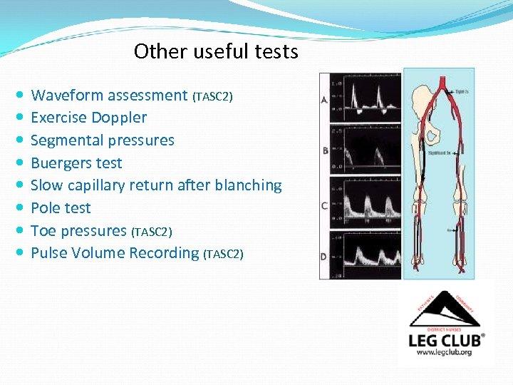 Other useful tests Waveform assessment (TASC 2) Exercise Doppler Segmental pressures Buergers test Slow