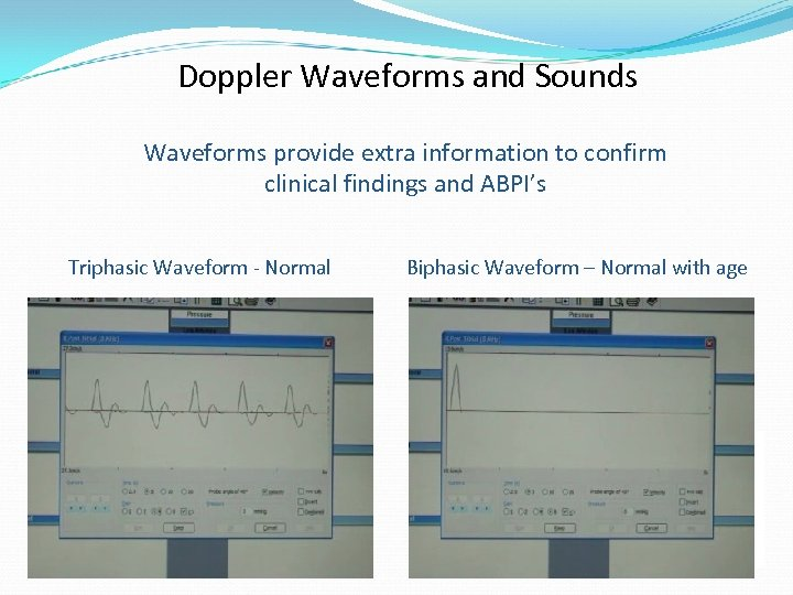 Doppler Waveforms and Sounds Waveforms provide extra information to confirm clinical findings and ABPI's