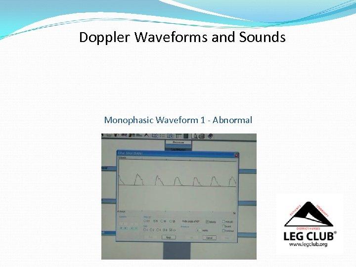 Doppler Waveforms and Sounds Monophasic Waveform 1 - Abnormal