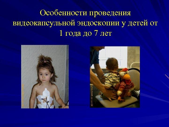 Особенности проведения видеокапсульной эндоскопии у детей от 1 года до 7 лет
