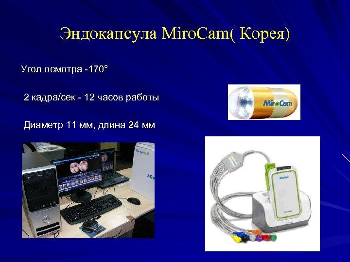 Эндокапсула Miro. Cam( Корея) Угол осмотра -170° 2 кадра/сек - 12 часов работы Диаметр