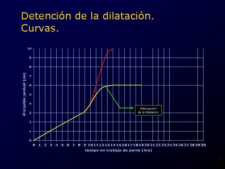 Detención de la dilatación. Curvas. interrupción de la dilatación .