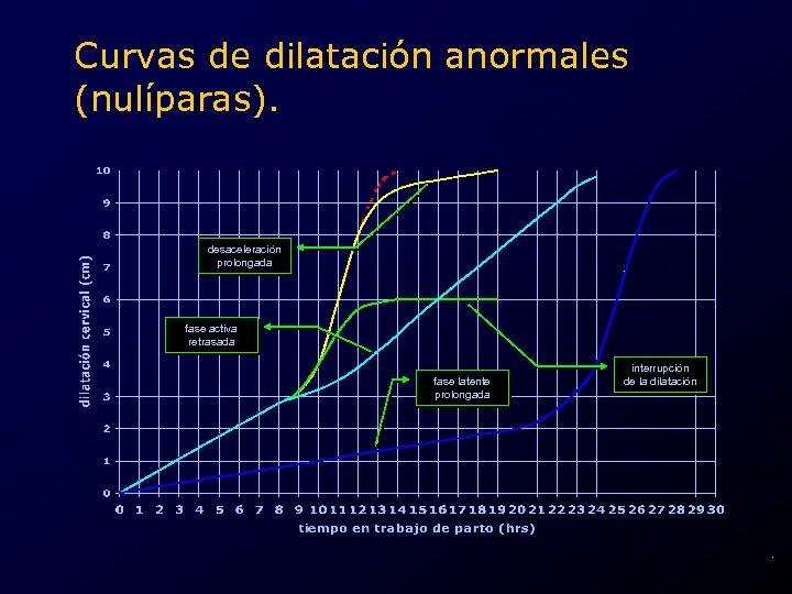Curvas de dilatación anormales (nulíparas). desaceleración prolongada fase activa retrasada fase latente prolongada interrupción
