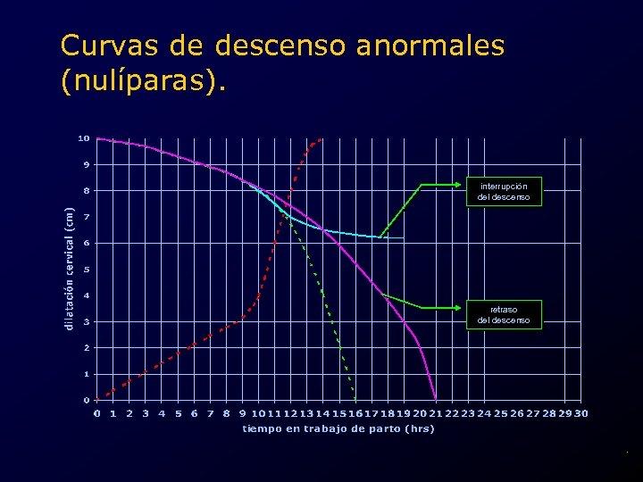 Curvas de descenso anormales (nulíparas). interrupción del descenso retraso del descenso .