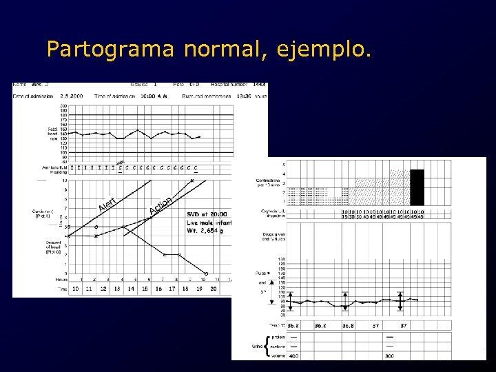 Partograma normal, ejemplo. .