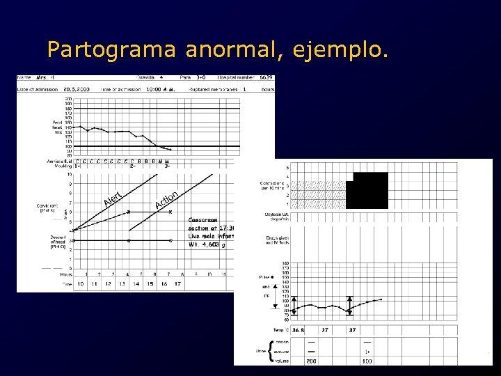 Partograma anormal, ejemplo. .