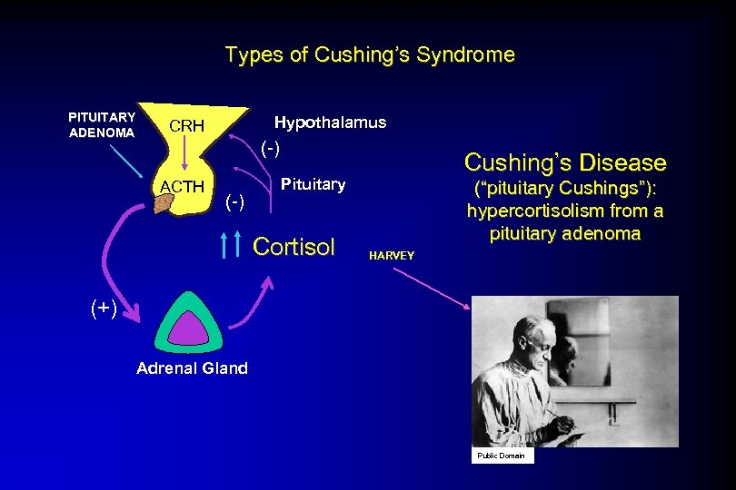 Types of Cushing's Syndrome PITUITARY ADENOMA Hypothalamus CRH (-) ACTH (-) Cushing's Disease Pituitary