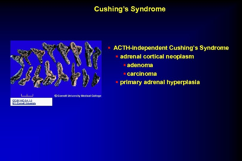 Cushing's Syndrome § ACTH-independent Cushing's Syndrome § adrenal cortical neoplasm § adenoma § carcinoma
