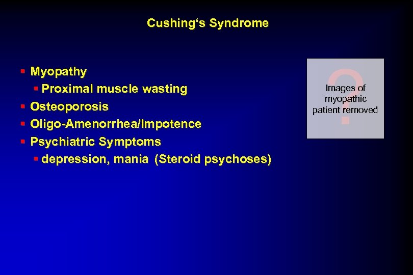 Cushing's Syndrome § Myopathy § Proximal muscle wasting § Osteoporosis § Oligo-Amenorrhea/Impotence § Psychiatric