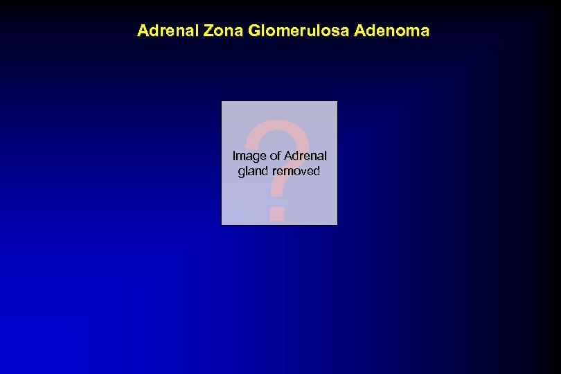 Adrenal Zona Glomerulosa Adenoma ? Image of Adrenal gland removed