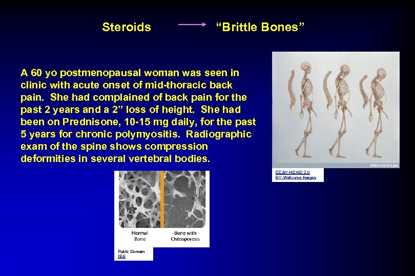"Steroids ""Brittle Bones"" A 60 yo postmenopausal woman was seen in clinic with acute"