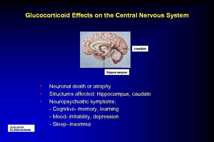Glucocorticoid Effects on the Central Nervous System caudate hippocampus • • • CC: BY-NC-ND