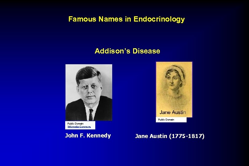 Famous Names in Endocrinology Addison's Disease Public Domain Wikimedia Commons John F. Kennedy Jane