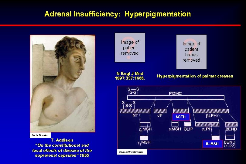 Adrenal Insufficiency: Hyperpigmentation ? Image of patient removed N Engl J Med 1997; 337: