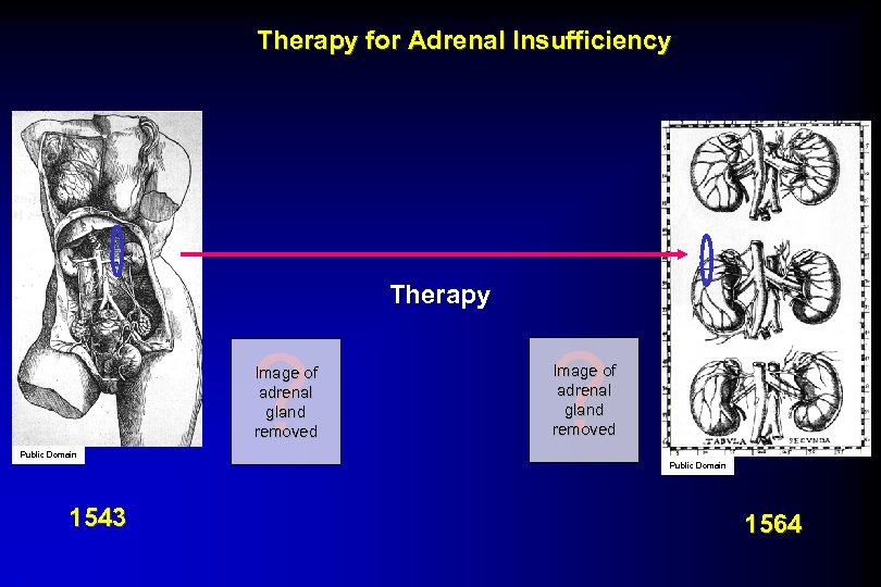 Therapy for Adrenal Insufficiency Therapy ? Image of adrenal gland removed Public Domain 1543