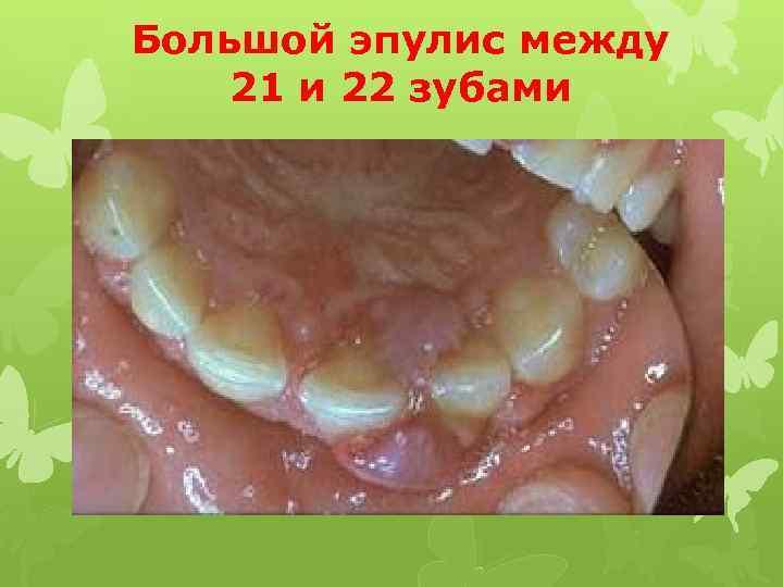 Большой эпулис между 21 и 22 зубами