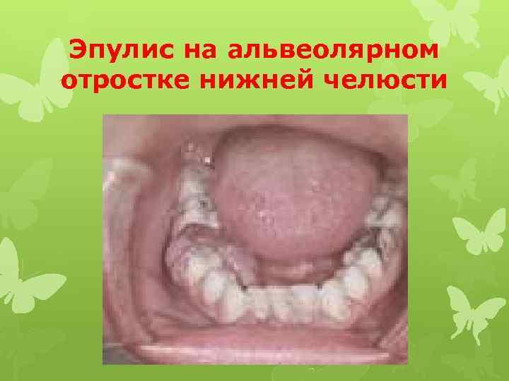 Эпулис на альвеолярном отростке нижней челюсти
