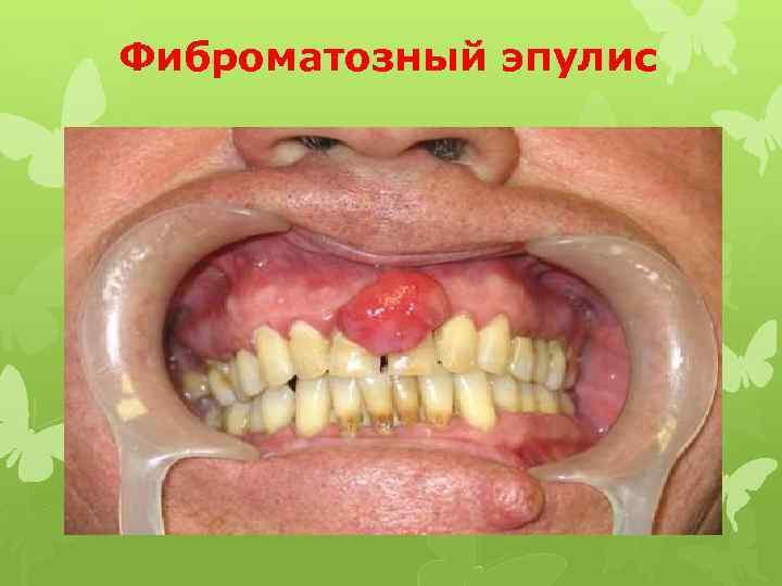Фиброматозный эпулис