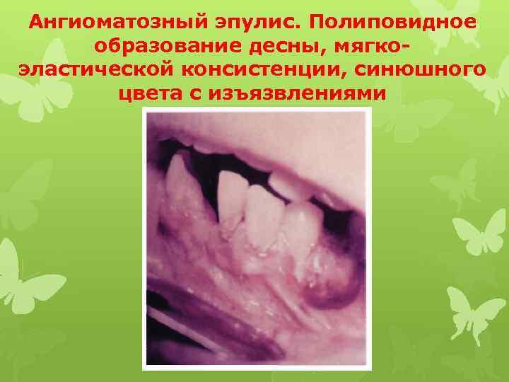 Ангиоматозный эпулис. Полиповидное образование десны, мягкоэластической консистенции, синюшного цвета с изъязвлениями