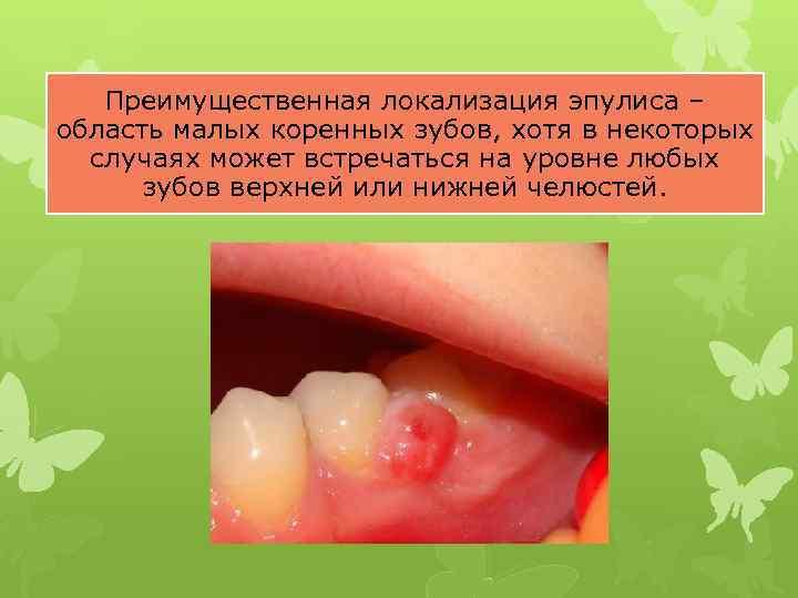 Преимущественная локализация эпулиса – область малых коренных зубов, хотя в некоторых случаях может встречаться
