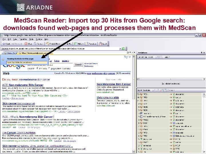 Med. Scan Reader: Import top 30 Hits from Google search: downloads found web-pages and
