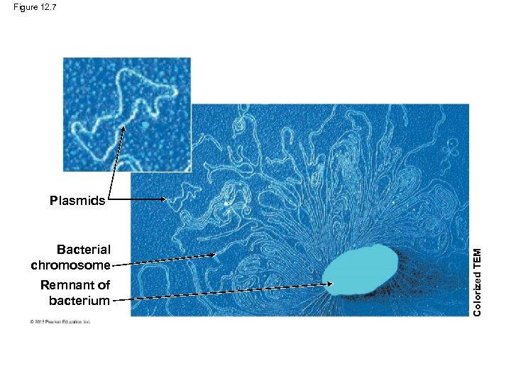 Figure 12. 7 Bacterial chromosome Remnant of bacterium Colorized TEM Plasmids