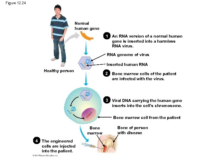 Figure 12. 24 Normal human gene 1 An RNA version of a normal human
